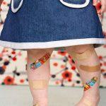 odrana kolena